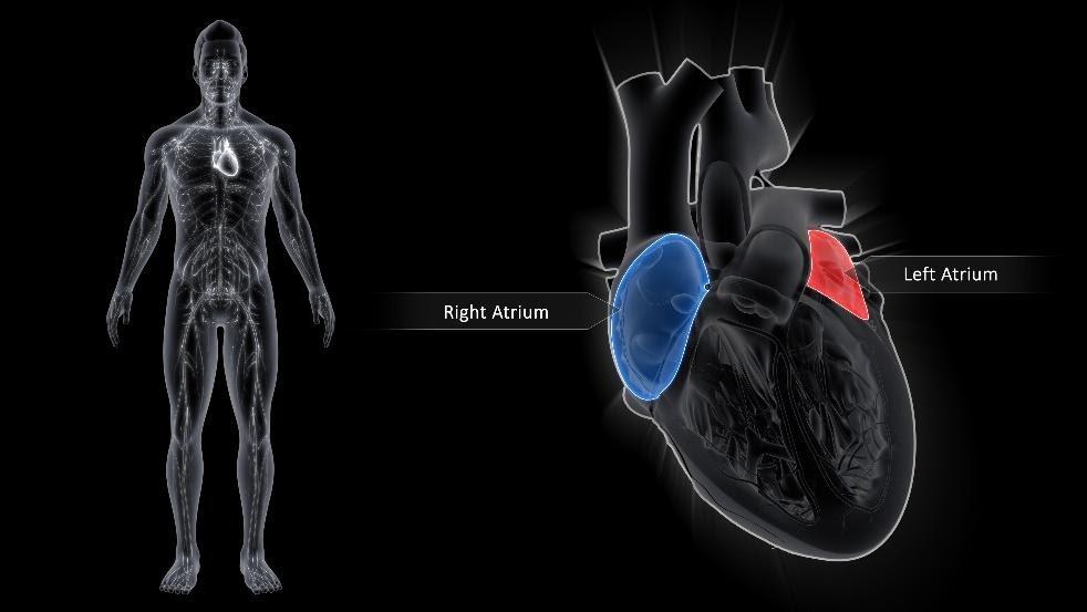 atrial fibrillation afib
